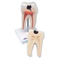 Зубы Модель нижнего двухкоренного моляра, демонстрирующая кариозное разрушение, 2 части