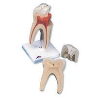 Зубы Модель верхнего моляра с тройным корнем, 3 части